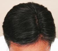 中医学では鬚髪早白(しゅはつそうはく